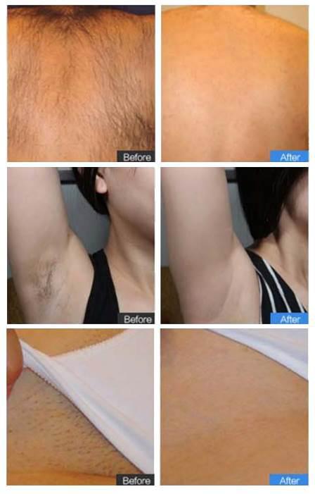 удаление волос лазером до и после