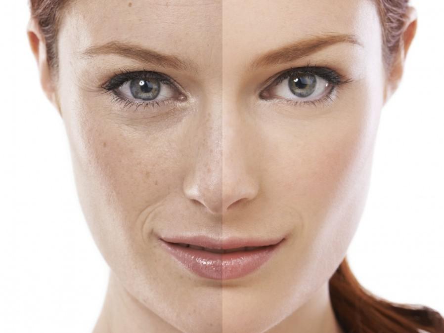 обновление кожи до и после