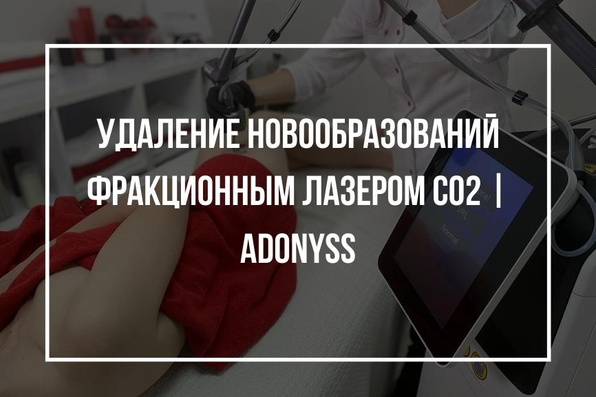 Кейс: Удаление новообразований фракционным лазером CO2   Adonyss