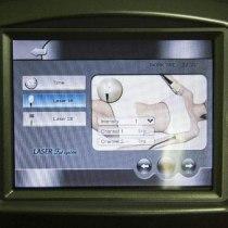 Аппарат для похудения липолазер Young-in 12LS | Venko - Фото 21420